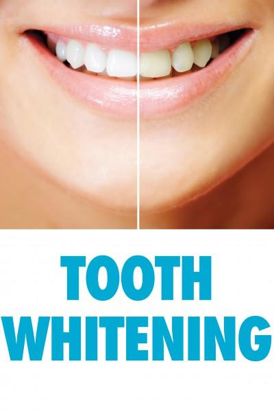 Zahnbleaching / Zahnaufhellung für 2 Personen